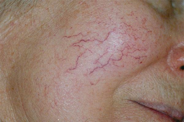 Facial Thread Veins Natural Treatment